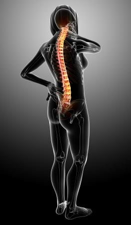 full body x-ray female spine pain  Stock Photo - 13757807