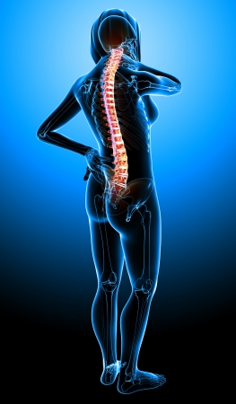 X-ray of female spine pain in blue Stock Photo - 13757808