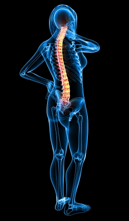Full X-ray of female spine pain  Stock Photo - 13757806