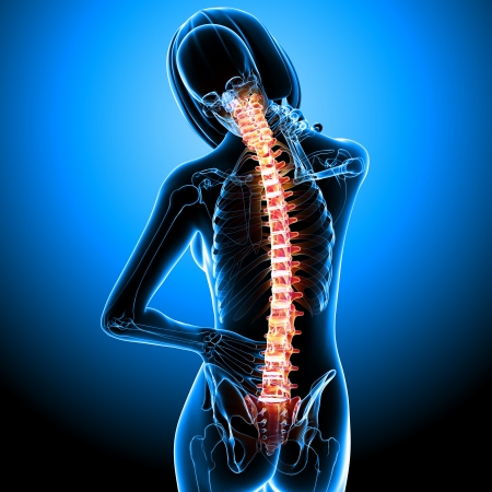 Female spine pain x-ray in blue Stock Photo - 13756383