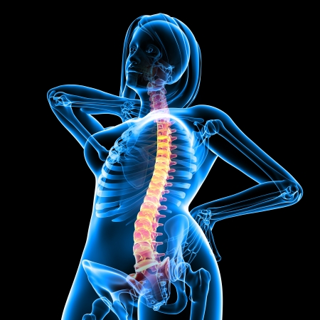 X-ray of feamale spine pain  Stock Photo - 13757813