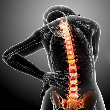 Anatomy of female back pain Stock Photo - 13757916