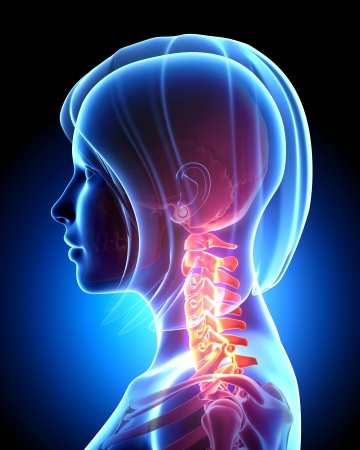 Anatomy of Pain in neck of female Stock Photo - 14606254