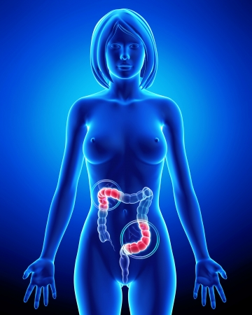 Female anatomy - partial pain in digestive system Stock Photo - 14606578