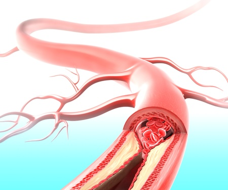 arteries: Athersclerosis in artery