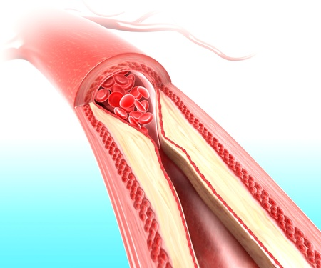 causaba: Aterosclerosis en la arteria causada por la placa de colesterol Foto de archivo