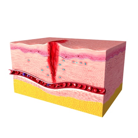side of tissue repair of human skin photo