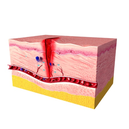 tissue repair of human skin with white background photo