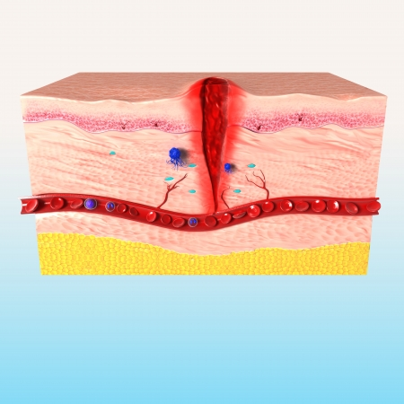 Tissue repair of human skin photo