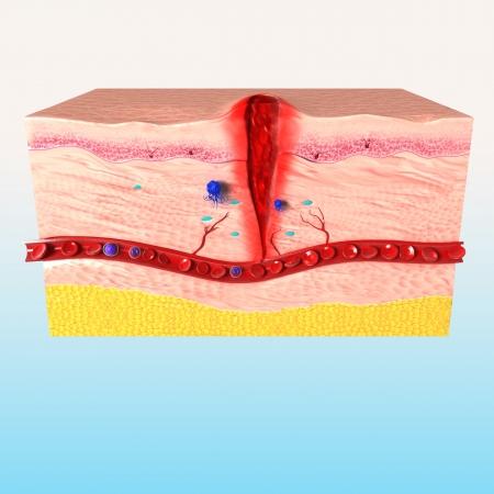 Tissue repair of human skin photo