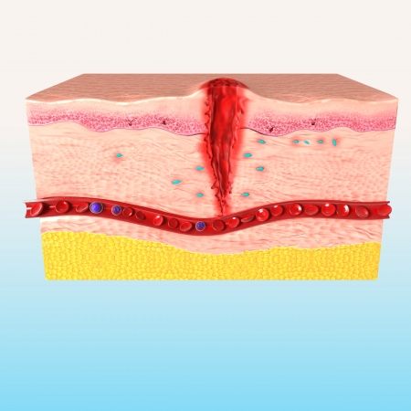 step of Tissue repair of human skin photo