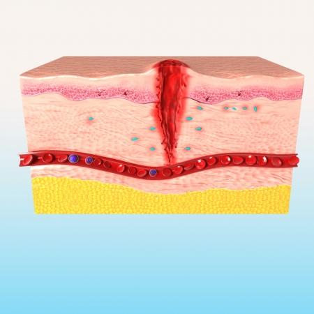 step of Tissue repair of human skin photo
