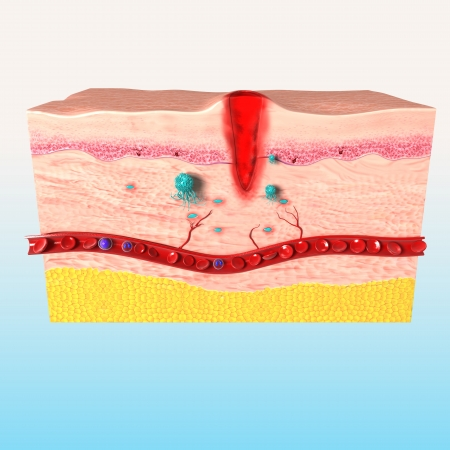 medical cross: front side of tissue repair of human skin