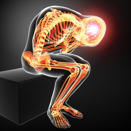 hipofisis: dolor de cuerpo completo en gris