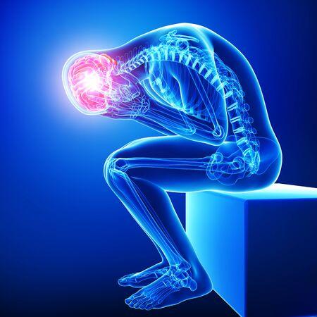 brain pain in blue Stock Photo - 15482207