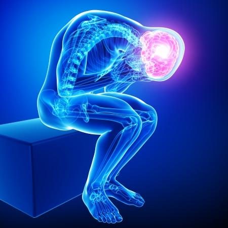 ağrı: mavi erkek beyin ağrı Stok Fotoğraf