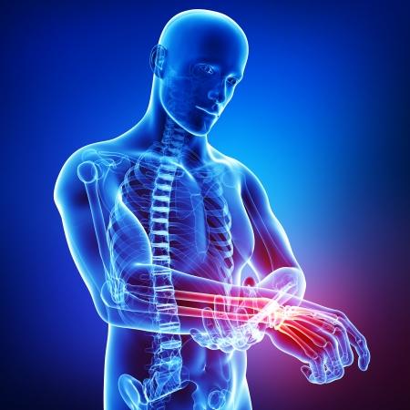 douleur main: 3d illustration de l'art de la douleur main m�le Banque d'images