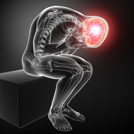 x ray image: male brain pain in gray