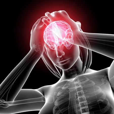 x ray image: female brain pain in gray Stock Photo