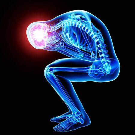 hipofisis: cerebro dolor en negro Foto de archivo