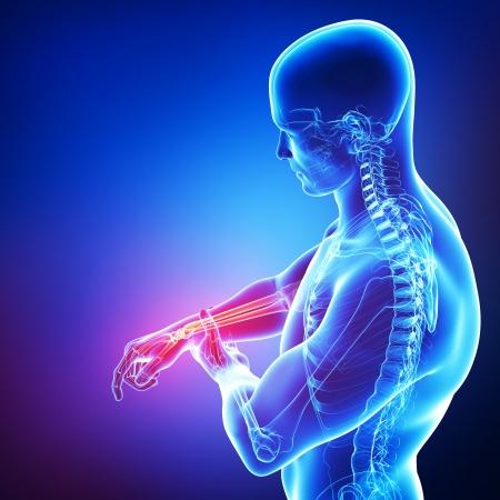 dolor muscular: dolor en la mano masculina en azul