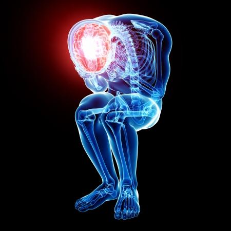 x ray image: brain pain in black