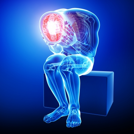 x ray image: brain pain in blue