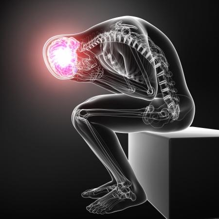 brain pain in gray Stock Photo - 15482585