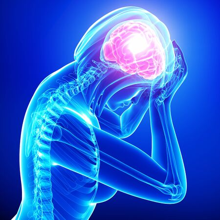 x ray image: female brain pain in blue Stock Photo