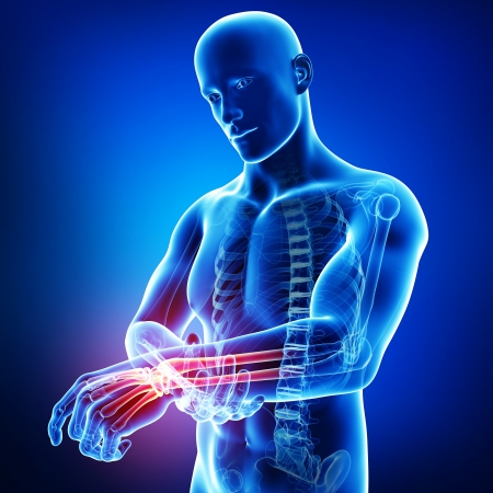 青で男性の手の痛み