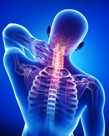 male neck pain