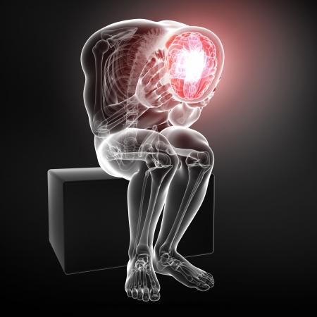 pituitary gland: male brain pain Stock Photo