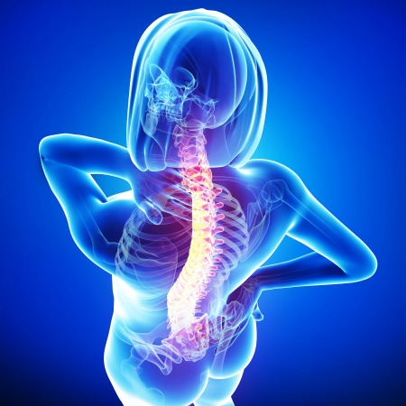 女性の背中の痛み