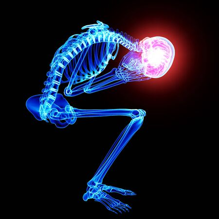 brain pain in skeleton Stock Photo - 15482482