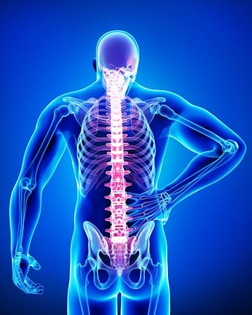 colonna vertebrale: mal di schiena in blu Archivio Fotografico