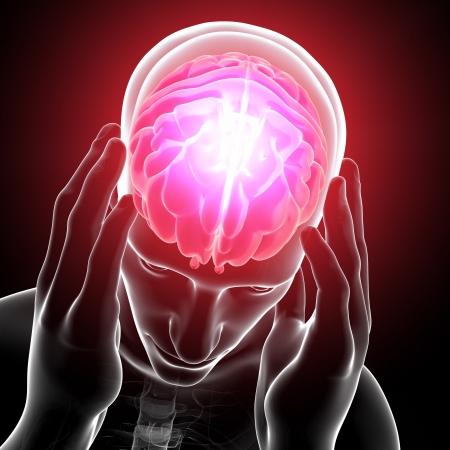 hipofisis: cerebro dolor en gris Foto de archivo