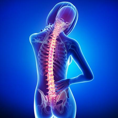 dolor muscular: dolor de espalda de la mujer Foto de archivo