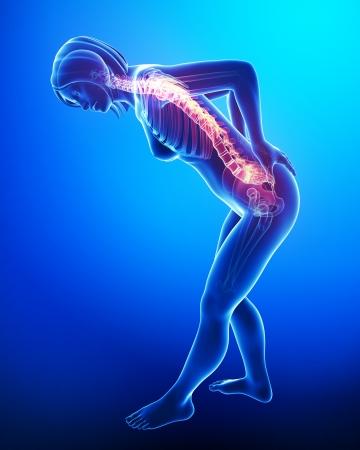 女性の背中の痛みの 3 d アート イラスト