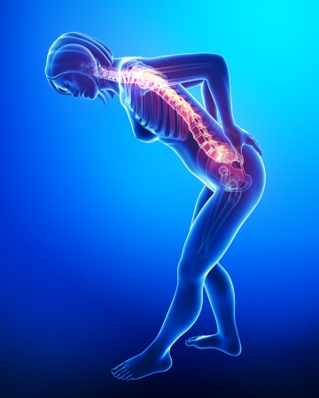 3d Illustration Kunst der weiblichen Rückenschmerzen Standard-Bild - 15482479