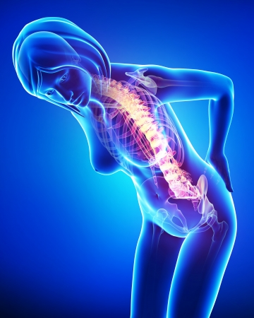 female back pain in blue Stock Photo