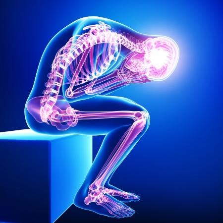 hipofisis: dolor de cuerpo completo en azul Foto de archivo