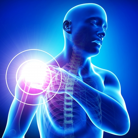 'head and shoulders': male shoulder pain in blue Stock Photo