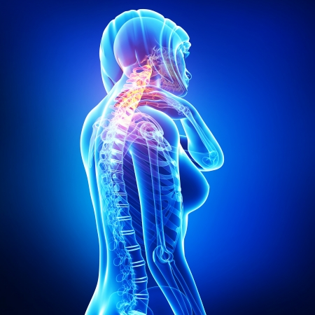 'head and shoulders': neck pain in blue