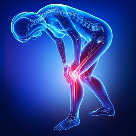 dolor rodilla: dolor en la rodilla femenina en azul Foto de archivo