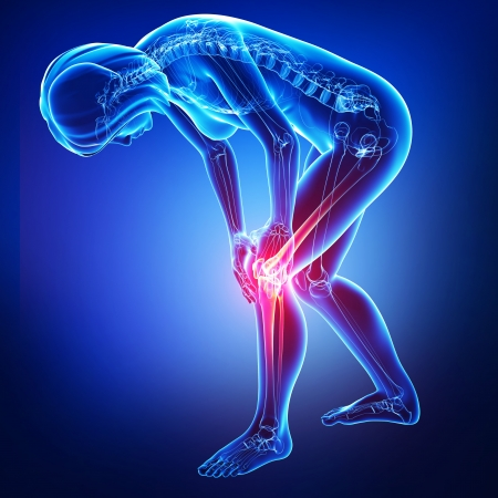 female knee pain in blue