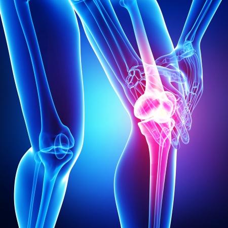아픈: 파란색 무릎 통증 스톡 사진