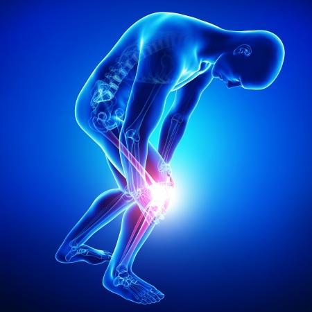 dolor de rodilla: dolor en la rodilla masculina en azul