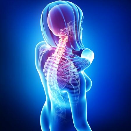 dolor muscular: dolor de cuello en azul Foto de archivo