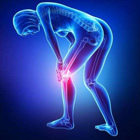 osteoporosis: Anatom�a del dolor de rodilla en azul Foto de archivo