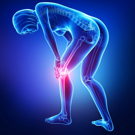 knee joint: anatomy of knee pain in blue Stock Photo